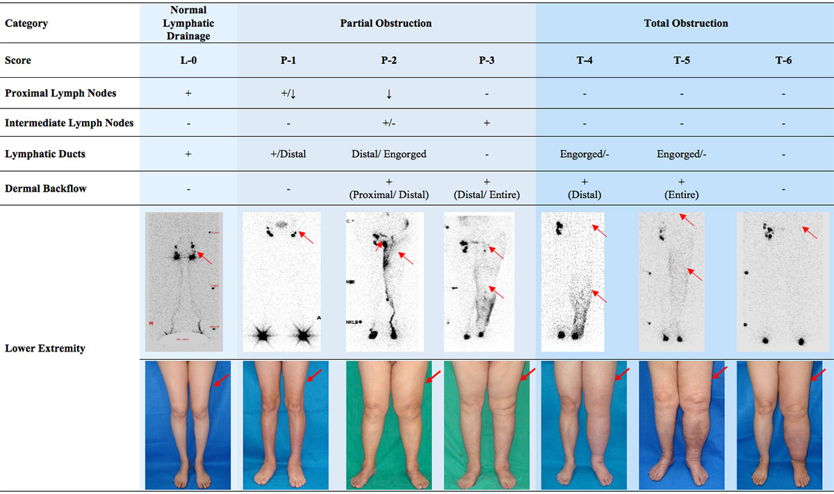 Lymphedema Grading Systems - Before Treatment photos and table - patients legs