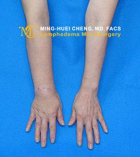 Lymphedema - Before Treatment photo - hands, patient 1